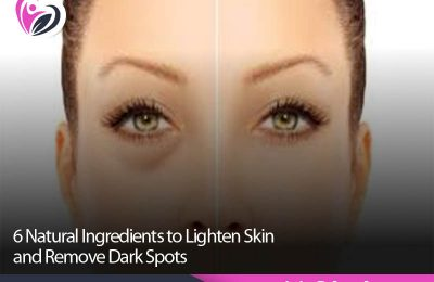6 Natural Ingredients to Lighten Skin and Remove Dark Spots